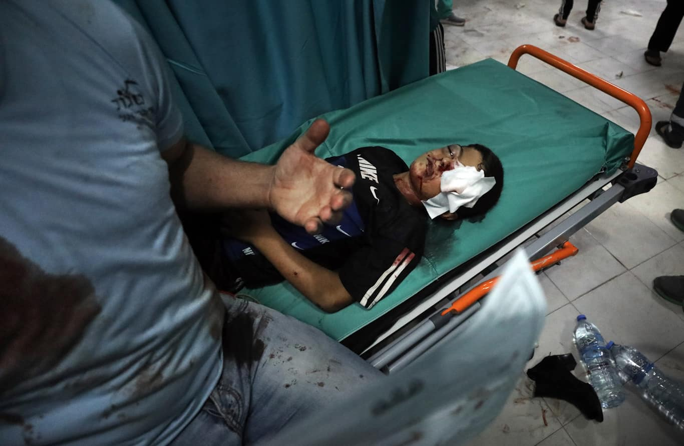 A wounded boy lies on a stretcher following an Israeli attack in Beit Lahiya Gaza