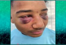 Police viciously beat black teen pulled over for speeding